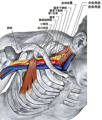 Thoracic_outlet_syndrome